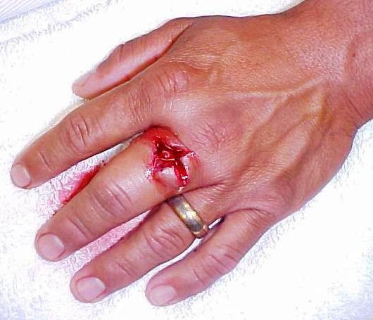 Culture of Safety-.d.-middle-finger.jpg