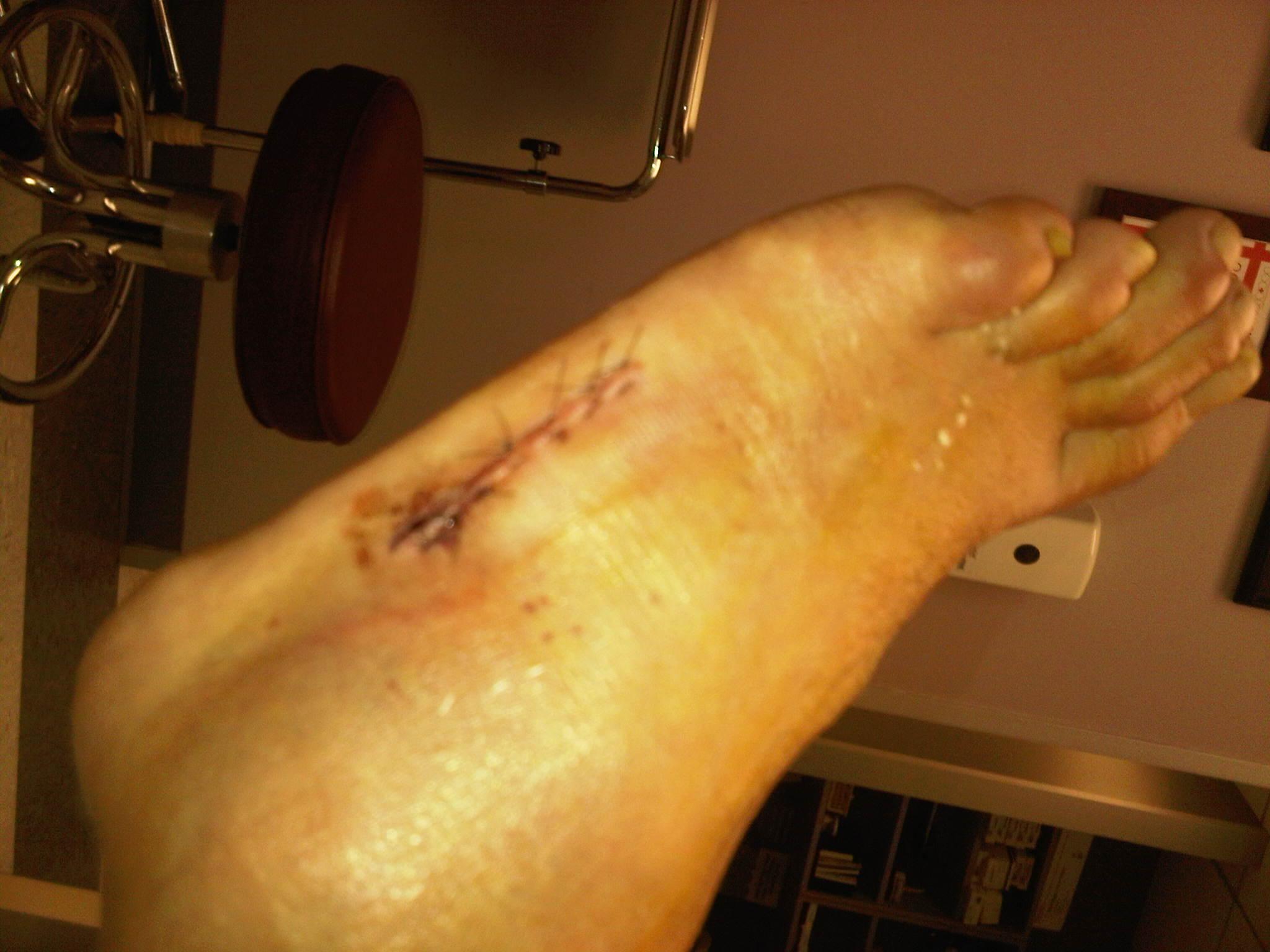 Surgery tomorrow-northwest-harris-20110815-00133.jpg