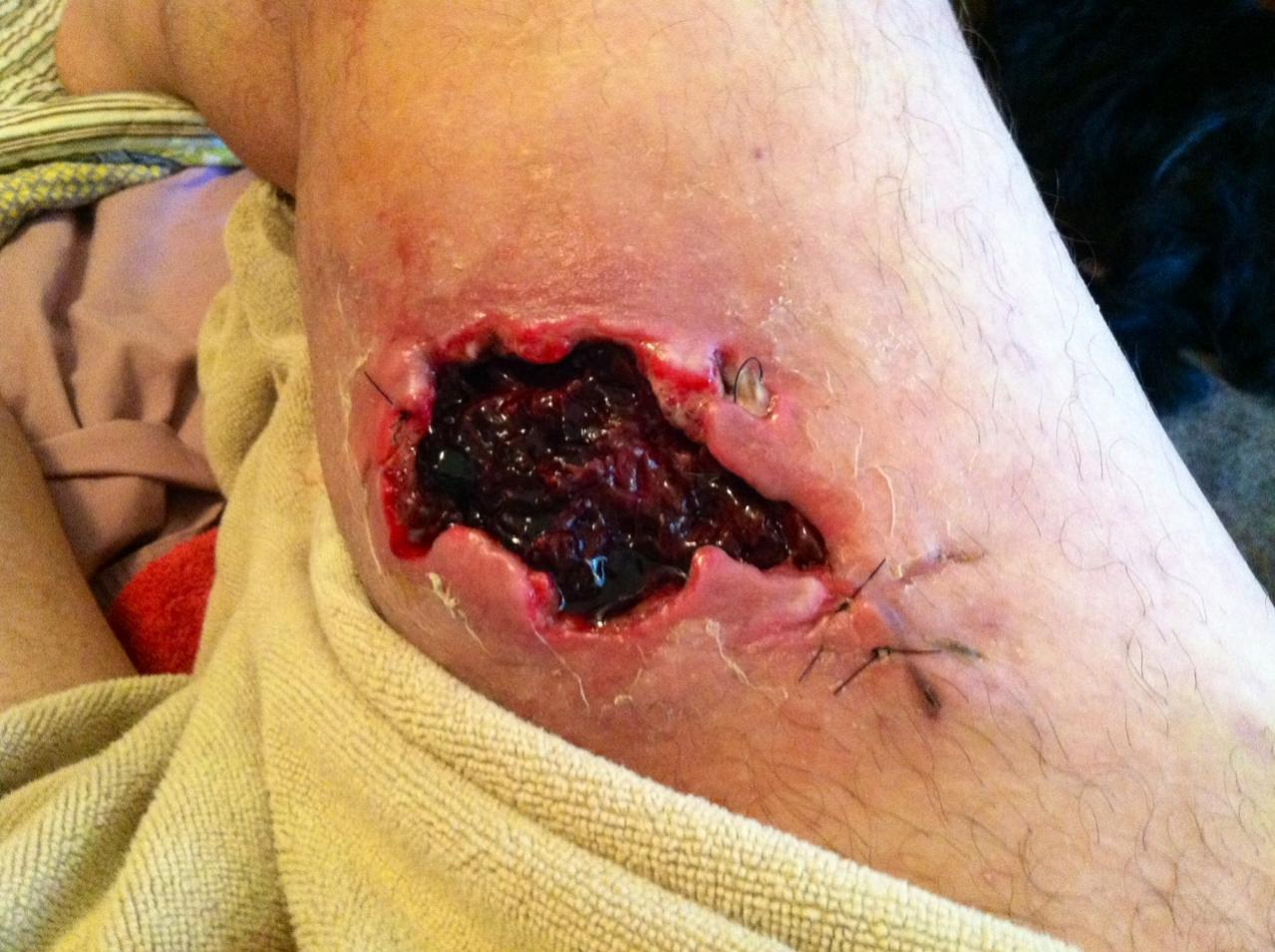 357 SIG wound effects - Warning: GRAPHIC