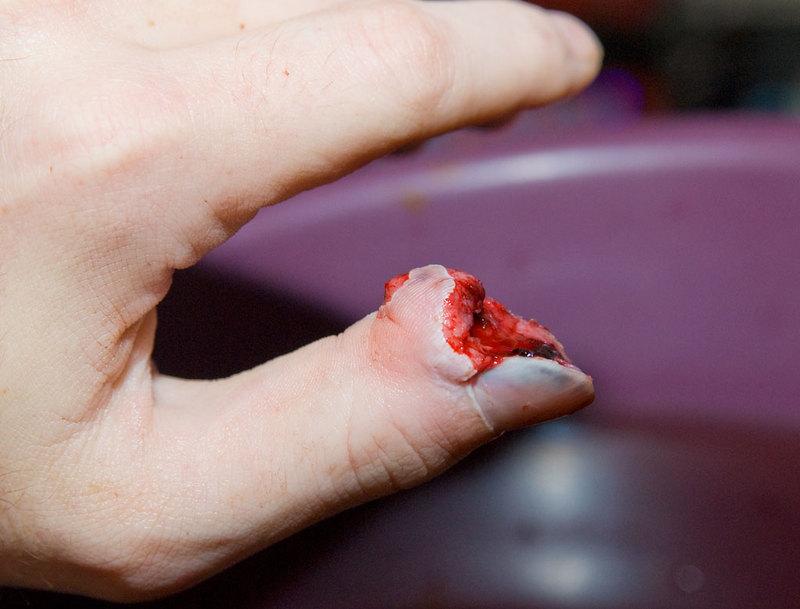 Keep thumbs away from cylinder gap!!: MERGED-thumb6vl3.jpg